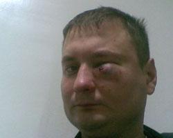 Избит харьковский таксист… Нападавший — врач?